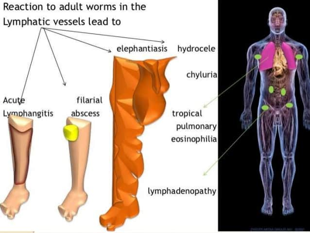 Signs and symptoms of filariasis lymphatic filariasis